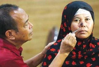 Kanker Kepala-Leher Serang Ribuan Pasien